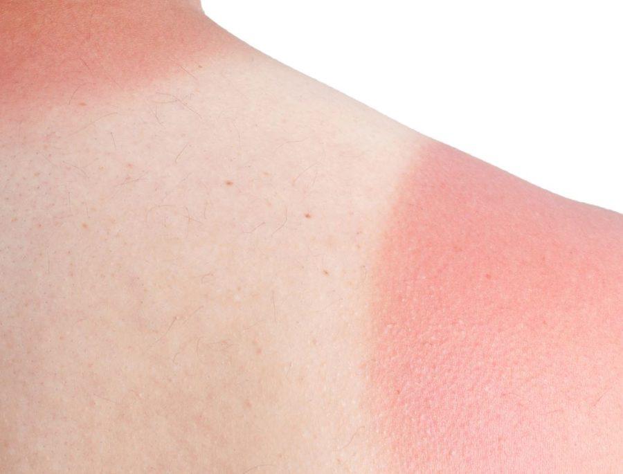 richtiger sonnenschutz - Sonnenbrand – Was nun? Die besten Tipps gegen Sonnenbrand!