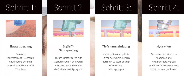 HydraFacial Apparative Gesichtskosmetik - laVital Kosmetik LASER Haarentfernung in Klagenfurt